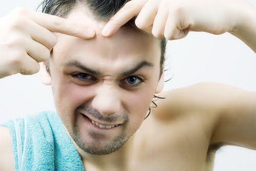 Cách trị mụn đầu đen vĩnh viễn cho nam giới