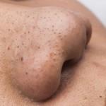 Trị mụn đầu đen bằng Nano Skin hiệu quả nhanh chóng