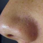 Điều trị mụn đầu đen bằng Oxy-led da có bị ảnh hưởng gì không?