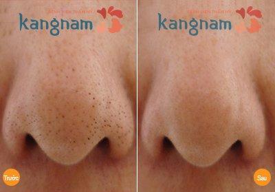 hình ảnh trị mụn đầu đen ở mũi