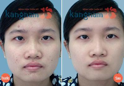 hinh-anh-tri-mun-kang-nam (1)