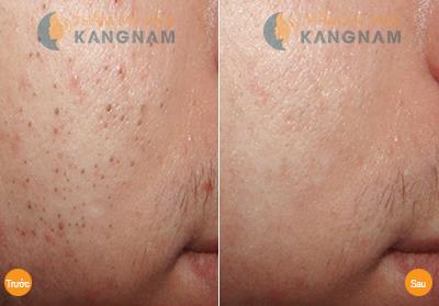 Cho làn da bị mụn diện mạo mới với công nghệ Oxy Led