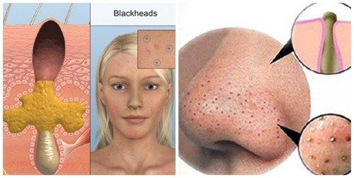 mụn đầu đen là gì 1