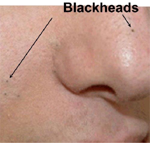 mụn đầu đen là gì 5