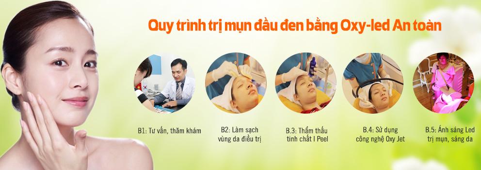 Quy trình trị mụn đầu đen an toàn