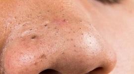Rùng mình với 4 TÁC HẠI của mụn đầu đen gây ra cho làn da