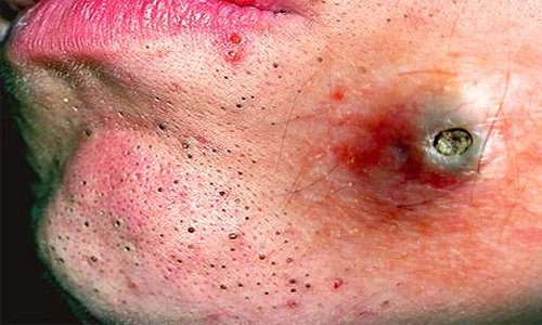 tác hại của mụn đầu đen 5