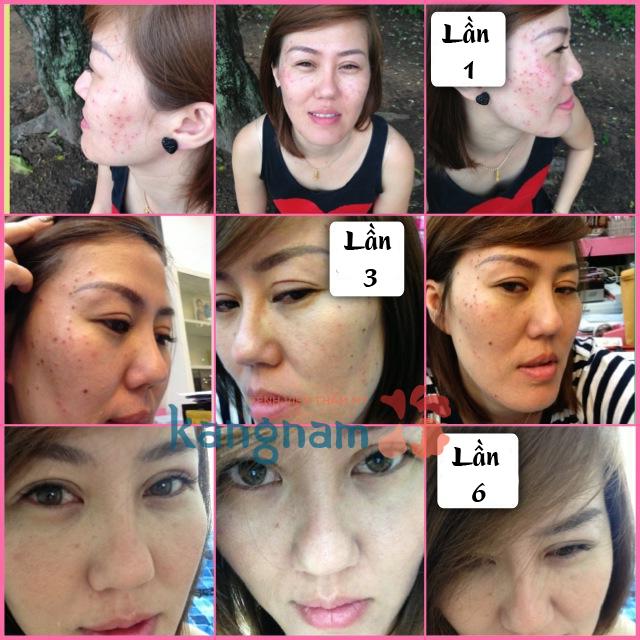 tri-mun-bang-cong-nghe-nano-skin-co-tot-khong (6)