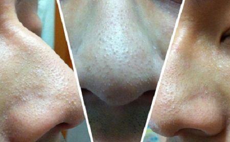 điều trị mụn đầu đen bằng công nghệ Nano skin