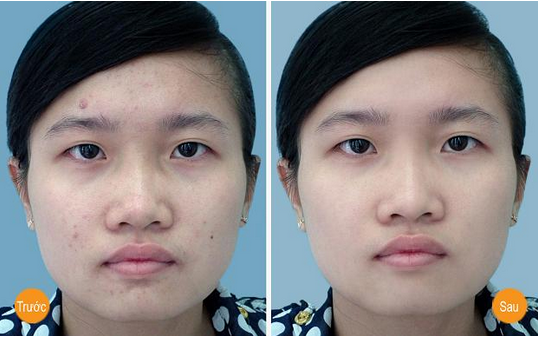 Kết quả trị mụn đầu đen vượt trội với công nghệ Oxy - Led