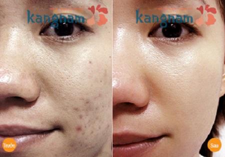 trị mụn đầu đen bằng công nghệ Nano Skin 6