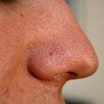 Sau điều trị mụn đầu đen da có bị sẹo không ?